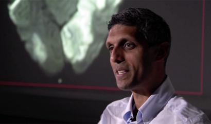 Consultant neurologist Arvind Chandratheva with a brain scan